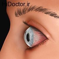 تغذیه و خشکی چشم