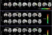 تاثیرات مهم عشق و علاقه روی مغز