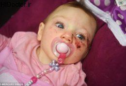 تولد نوزادی با اختلال نادر مغزی