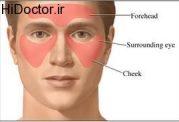 آسیب های ناشی از سینوزیت روی بدن