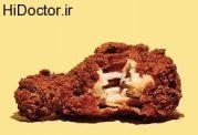 عوارض سوخاری های پرطرفدار برای سلامتی