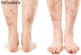 تاثیرات مختلف امراض قندی روی پوست
