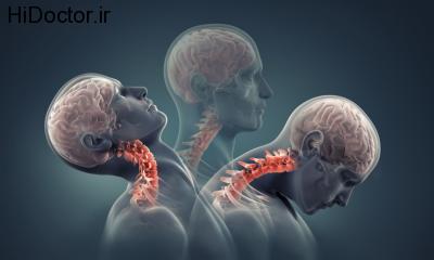 کاهش درد گردن با این روش ها