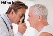 رتینوپاتی دیابتی چیست؟ از عوارض تا درمان