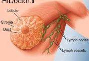 سرطان سینه در آقایان با این روش ها