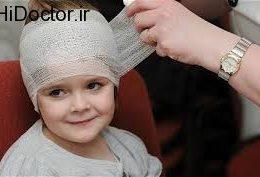 وارد شدن ضربه به سر کودک