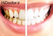 جلا دادن دندان ها با این روشها