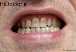 عوارض و آسیب های مشکل ساز برای دندان ها