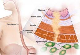 سرطان مری را ردیابی کنید
