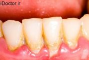 به افزایش کیفیت سلامت دهان و دندان خود کمک کنید