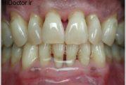 خطر امواج موبایل برای دهان و دندان