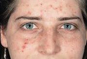 ضایعات پوستی  در نوجوانان