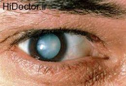 روش های پیشگیری از عوارض چشمی دیابت: