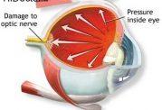 روش های معاینات چشم