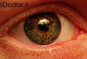 معاینات چشم پزشکی در چه زمانی باید انجام گردد؟
