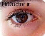 شیوه پیگیری درمان و ادامه مراقبت  فشار چشم