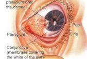 سوالات شایع درباره مشکلات چشم در دیابت