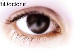 روش تنظیم فشار چشم در گلوکوم زاویه باز اولیه چگونه است؟