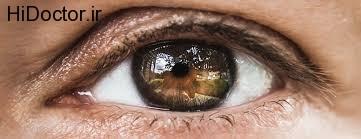 داروهای داخل چشمی