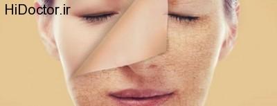افزایش زیبایی صورت تا قبل از عید