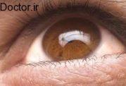 منحنی زاویه تغییرهای فشار چشم چیست؟