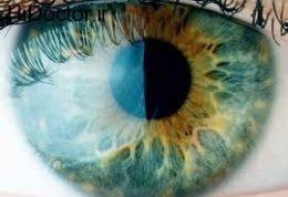 برآمدگی کوچکی در کنار قرنیه چشم بعد ازجراحی