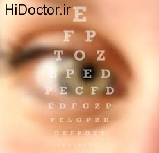 کورتیکواستروئیدها و داروهای داخل چشمی