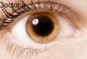 بررسی رایج ترین اختلالات بینایی