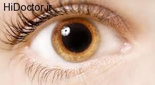 علل ایجاد خشکی چشم