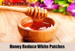 برطرف کردن دردهای مزمن بدن با عسل