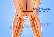 تمرینات ورزشی مناسب برای درمان پای پرانتزی