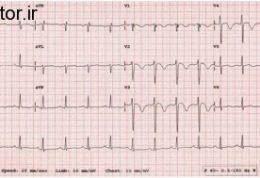 اطلاعاتی کامل در ارتباط با آریتمی های بطنی قلب