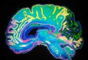 اختلال در عملکرد مغز با برخی مواد مخدر