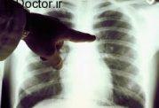 مراقبت های مهم برای سرطان ریه