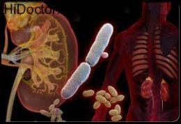 عفونت ادراری و این روش های درمانی