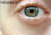 کنترل و تنظیم فشار چشم