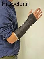آسیب به مچ دست با خانه تکانی