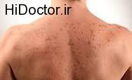 سرطان پوست ملانومایی با این نشانه ها