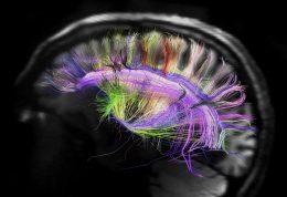 بالا رفتن فعالیت مغز در فصول گرم سال