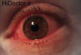 آسیب های آتش برای بینایی