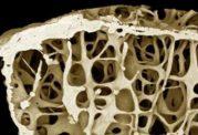 داروهای پوکی استخوان و عوارض جانبی آن ها