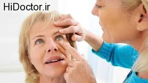 استعمال دخانیات و آسیب به بینایی