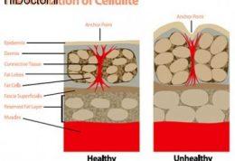 پیشنهادات درمانی برای رفع سلولیت