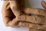 تشخیص بیماری ناخن از روی رنگ آن