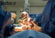 نوزادان سزارینی و این هشدار