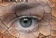 کویری شدن بینایی