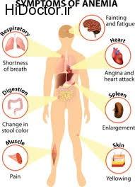 برای کم خونی به این علائم حساس شوید