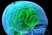 اهمیت درمان به موقع و سریع سکته مغزی