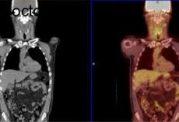 اسکن تومورهای سرطانی