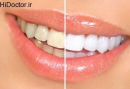 دندان سفید داشتن با این روش ها